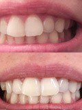 Awesome Tips To Help With Teeth Whitening